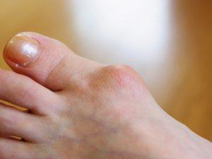 外反母趾はインソールをオーダーメイドすると改善する!?外反母趾とオーダーメイドインソールについて