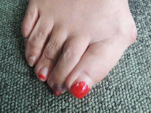 外反母趾のお客様の足の写真