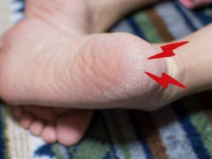 足底筋膜炎の写真