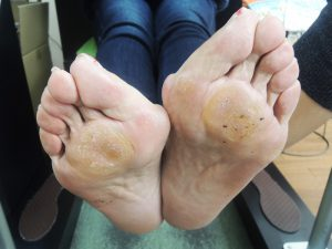 足の病気や変形は靴が原因かも!?靴が原因の足の病気について