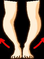 O脚のイラスト