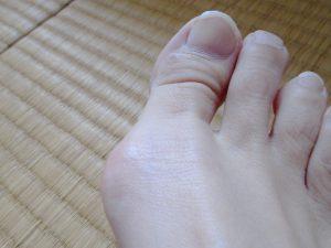 外反母趾の足の写真