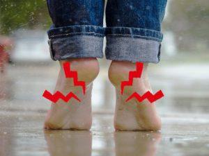 足裏のアーチの痛みをどうにかしたい!足裏アーチの痛みを軽減する方法