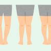 O脚・X脚・XO脚の違いは?O脚・X脚・XO脚の特徴や原因と改善方法