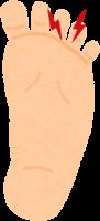 モートン病の足のイラスト