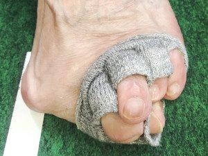 ひどい外反母趾のお客様の足の写真
