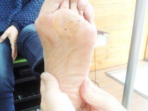 扁平足でインソールを使ってみたけど足が痛い…どうにか改善する方法はある?