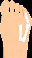内反小趾のイラスト