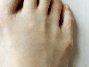 内反小趾でタコができて痛い…何か改善策はない?