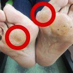 外反母趾でタコができて痛い…外反母趾とタコの改善のために