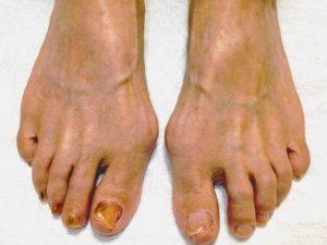 外反母趾で靴を履くと痛い…足に合う靴を履くと痛くなくなる!?