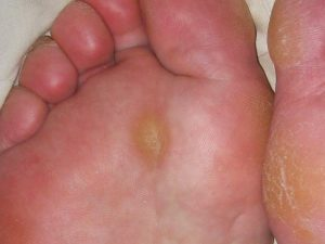 開張足でタコが痛い…足の人差し指や薬指の付け根にタコができている方は開張足かも!?