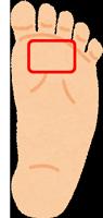 人差し指・中指の付け根(足の裏の前方)にできるタコ
