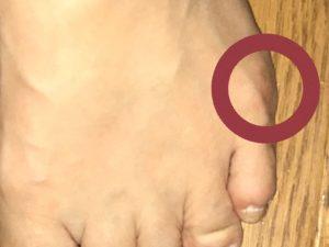足の小指の付け根が痛い!そんな方は内反小趾の可能性が!