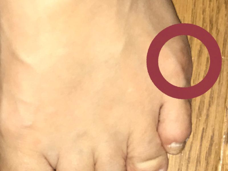 足 の 小指 の 付け根 痛い 足指の付け根が痛むさまざまな症状と原因