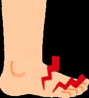 足の親指の付け根辺りが痛いイラスト