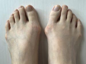 外反母趾でも歩きやすい靴はある!外反母趾でも歩きやすい靴とは?