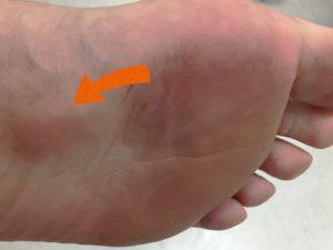 足底線維腫とインソールの関係について