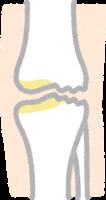 膝の軟骨がすり減っているイラスト