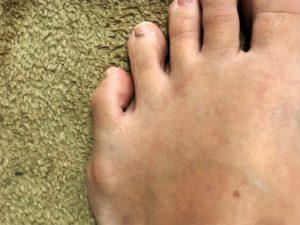 内反小趾で靴にインソールを入れるのは効果的?