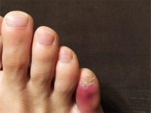 足の小指にタコができるのは靴が原因?