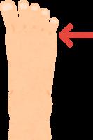 足の小指の付け根にできるタコ