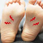 長時間歩くと土踏まずが痛いときの改善策は?